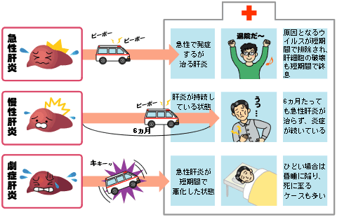 症 急性 肝炎 劇